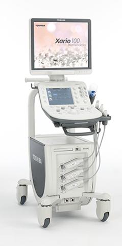 頸動脈超音波検査について